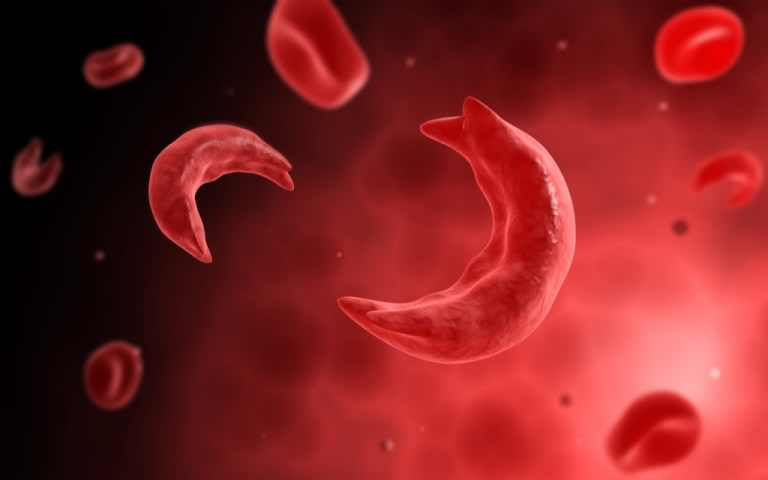 Sickle Cell Disorder