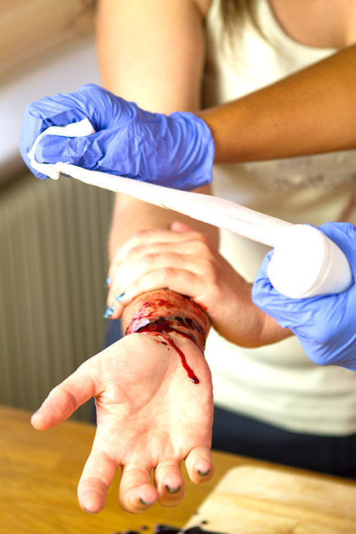 Dealing With Serious Bleeding